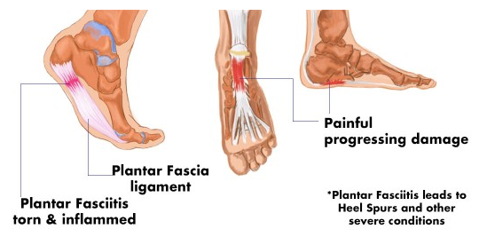 How_To_Get_Rid_Of_Plantar_Fasciitis