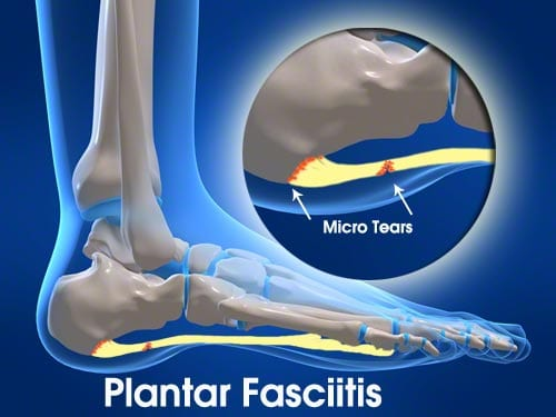 shoes for plantar fasciitis