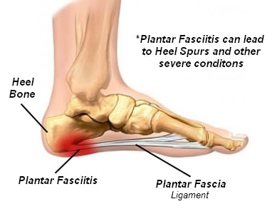 Best Shoes For Plantar Fasciitis And Bone Spurs