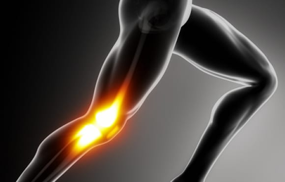 things runners should know about knees